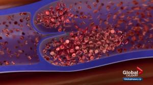 Thrombosis Month: how to detect and prevent blots clots